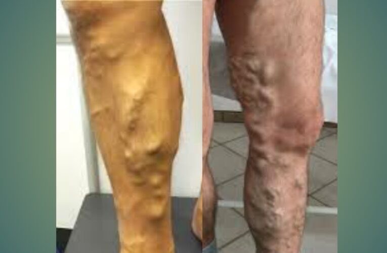 Varicose veins treatment in hindi