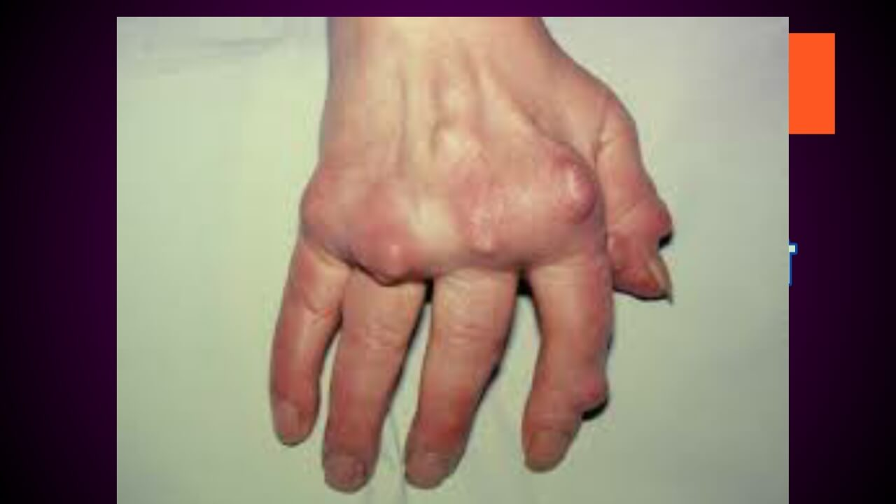 Meaning of gout in hindi